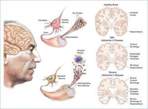 Mekanisme Alzheimer